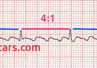 Flutter (2015) Beautiful Quiz Ecg 053 • Life In the Fast Lane • Litfl • Medical Blog