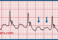 Flutter (2015) Lovely Should You Activate the Cardiac Cath Lab Ecg Medical